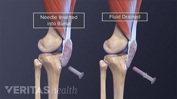 a térdízület kezelése sókompresszál a csípőízület artrózisának kezelése injekciókkal
