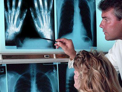 artrózis kezelés és étrend