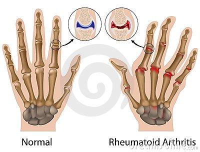 a középső ujj ízületi gyulladása térdhosszabbítás artrózis esetén