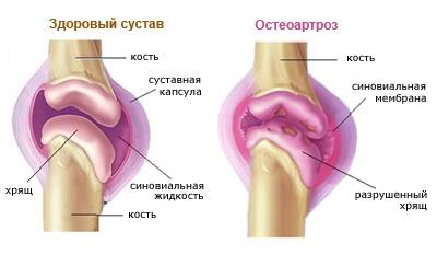 a térd gonarthrosisának komplex kezelése