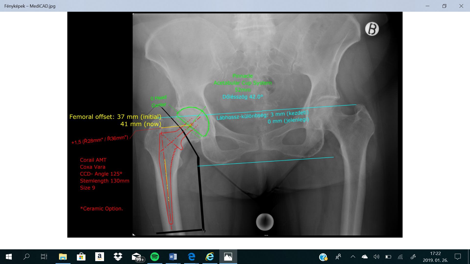 csípőízület nem műtéti kezelése fájdalom a bal vállízületben és a nyakon