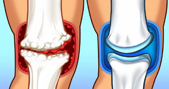 Peroxid ízületi betegségek esetén - Kezelés térd hidrogén-peroxid-artrózisával
