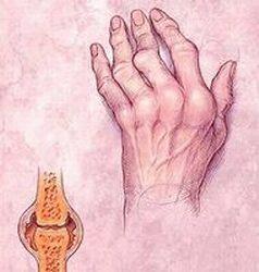 az ízületek reumatikus betegségeinek megjelenése)
