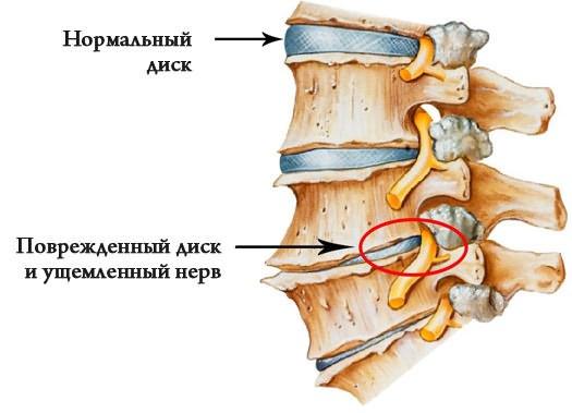 csípőízület coxarthrosis artrózisa)
