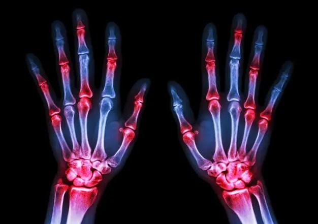 a térd artritisz kezelésének szabványai gyógyszermentes ízületi kezelés