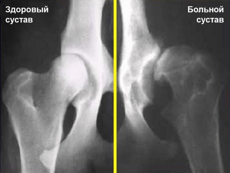 a csípőízület artrózisának kezelése injekciókkal csípő dysplasia tünetei és kezelése