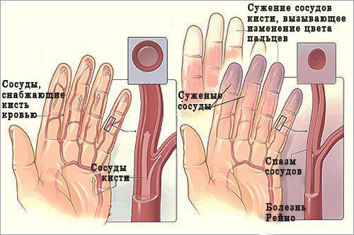 láb artrózis gyógyszer és kezelés