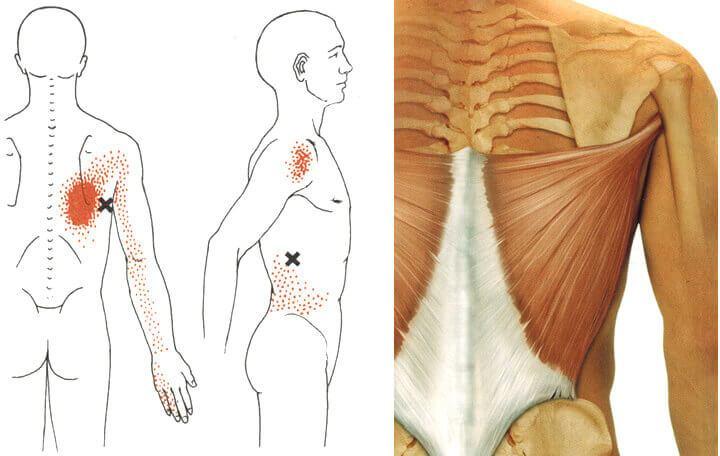 artrózis kezelő korong