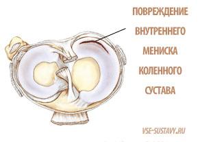 a bal térdízület belső meniszkuszának károsodása