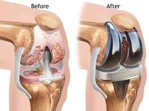 térd artrózis hogyan lehet kezelni