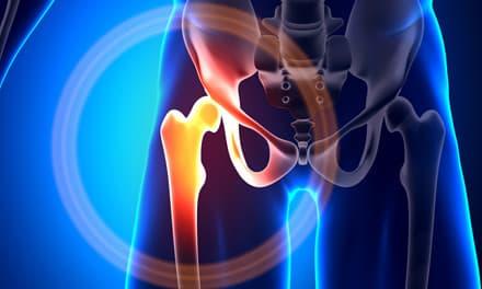 a boka ízületeinek és lábainak károsodása
