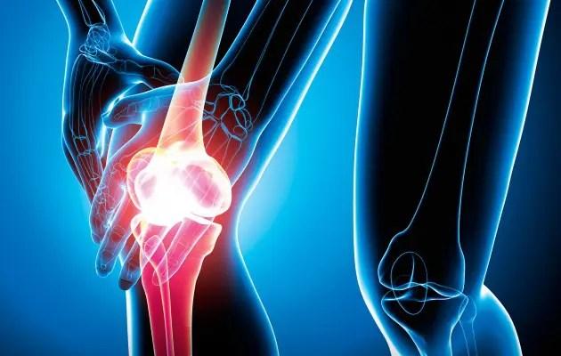 kórtörténet térd polyarthritis