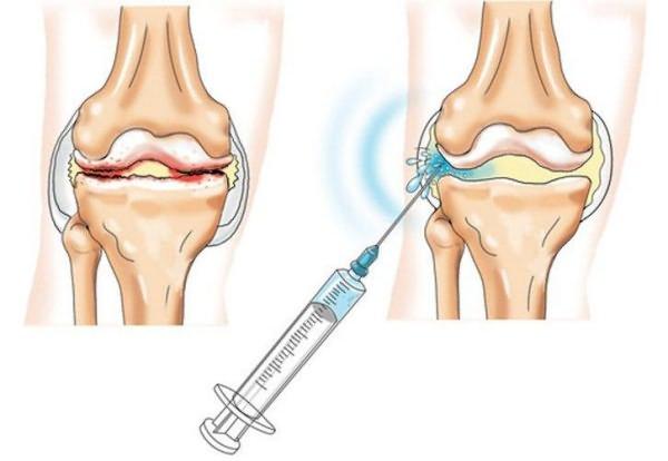 arthrodarin az arthrosis kezelésében térd endoszkópia artrózis esetén