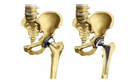 csípőízület coxarthrosis 2. fokozatú kezelési áttekintése az ízületek fájnak, mint enyhítik a fájdalmat