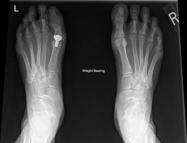 csontritkulás és ízületi fájdalmak