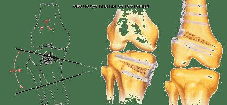 tejbogáncs ízületi fájdalmak kezelésére