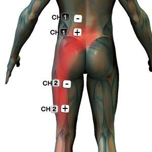 artrózis kezelése a poltavaban akut könyökfájdalom kezelése