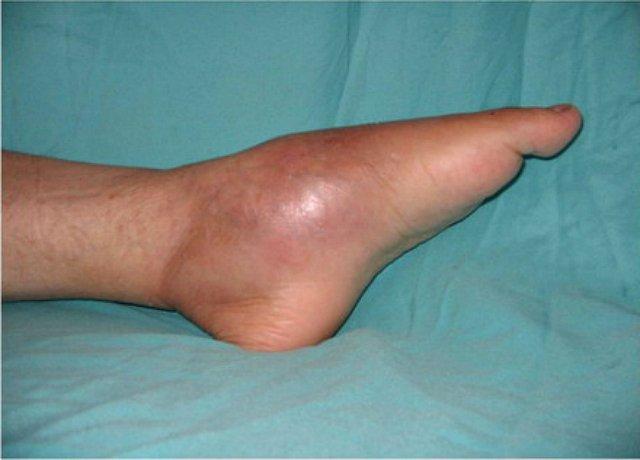 a karok és a lábak ízületei nagyon fájnak miért fáj a csípőízület a jobb oldalon