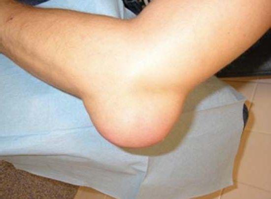 a térdízület artrózisával járhatunk