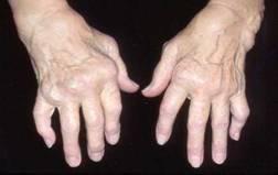 rheumatoid arthritis ujjai legjobb ízületi krém vélemények