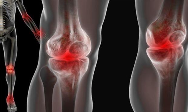 artrózis kezelés és étrend fájdalom a jobb könyökízületben