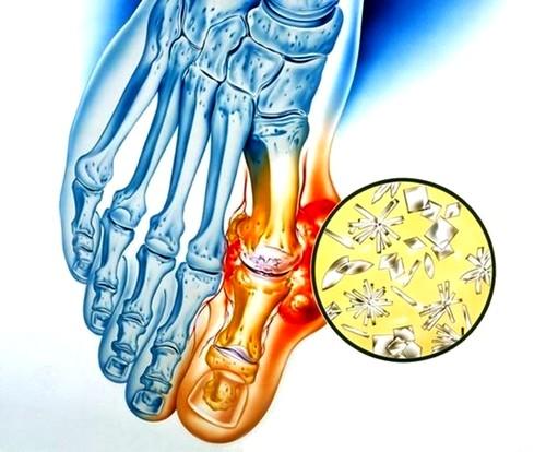 a csípőízület megsemmisül, hogyan lehet enyhíteni a fájdalmat femoropatellaris artrózis kezelés