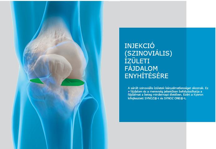a térd artritisz kezelésének szabványai