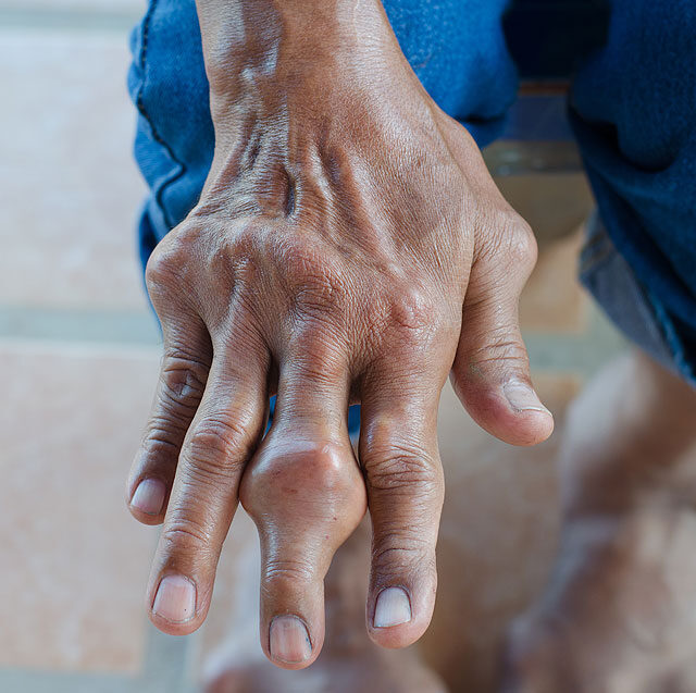 a lábak csontok és ízületek gyulladása zsibbadt az ízületi fájdalmak ellen