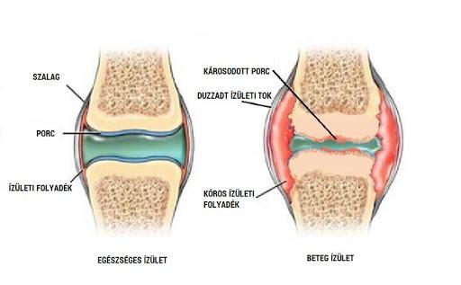 fáj a vállízületek ízületi betegség, rheumatoid arthritis