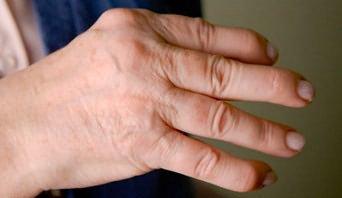 kúpok az ujjak ízületein, mint kezelni fájdalom mindkét kéz vállízületében