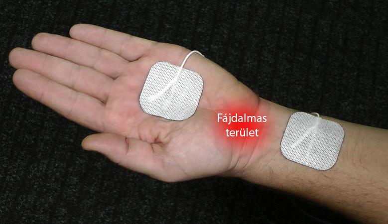 ízületi kezelés pskovban a kéz ízületeinek károsodása