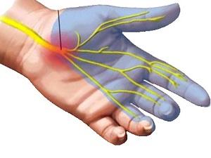 a közös fáj a kisujj a kéz mint az ősi időkben kezelt ízületi gyulladás