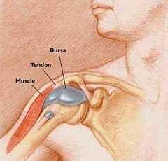 térdízületi serozus bursitis, hogyan kell kezelni