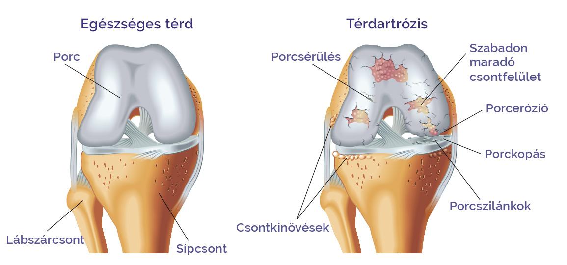 artrózis deformáció 2 stádiumú kezelés