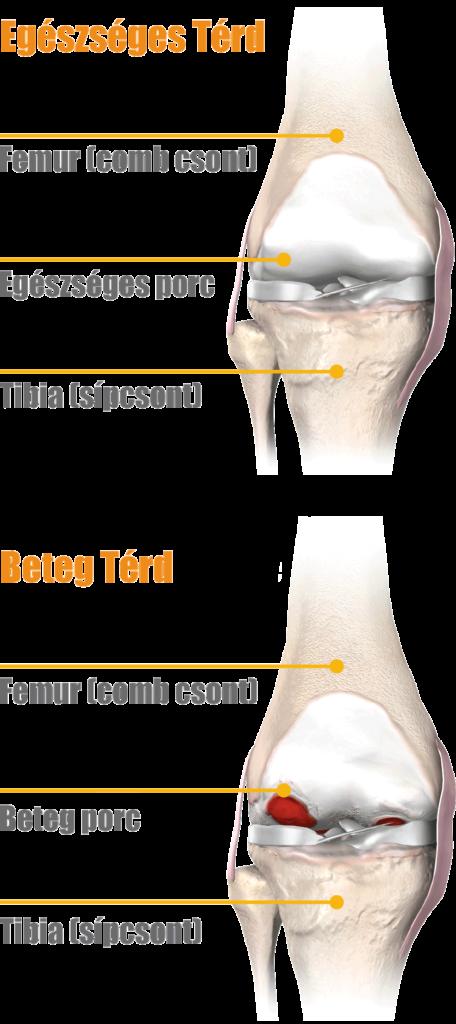 a jobb térdízületi tünetek mediális meniszkuszának károsodása
