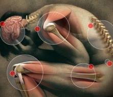 ízületi tégely ízületi gyulladás arthro prim plus