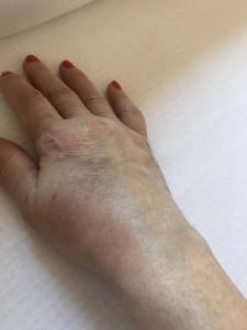 pokol ízületi betegségekkel fájó láb sarok és a hát alsó része