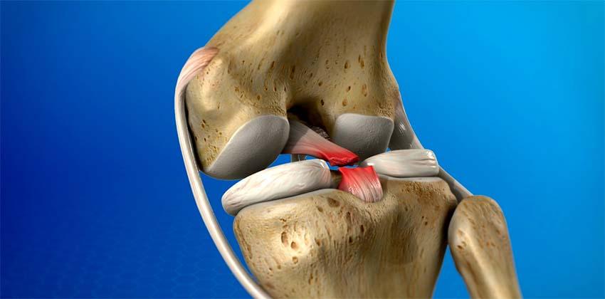 a teraflex előrehalad a térd artrózisában