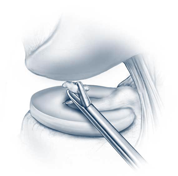 egér ízületi ízületi kezelés ízületek litoterápia