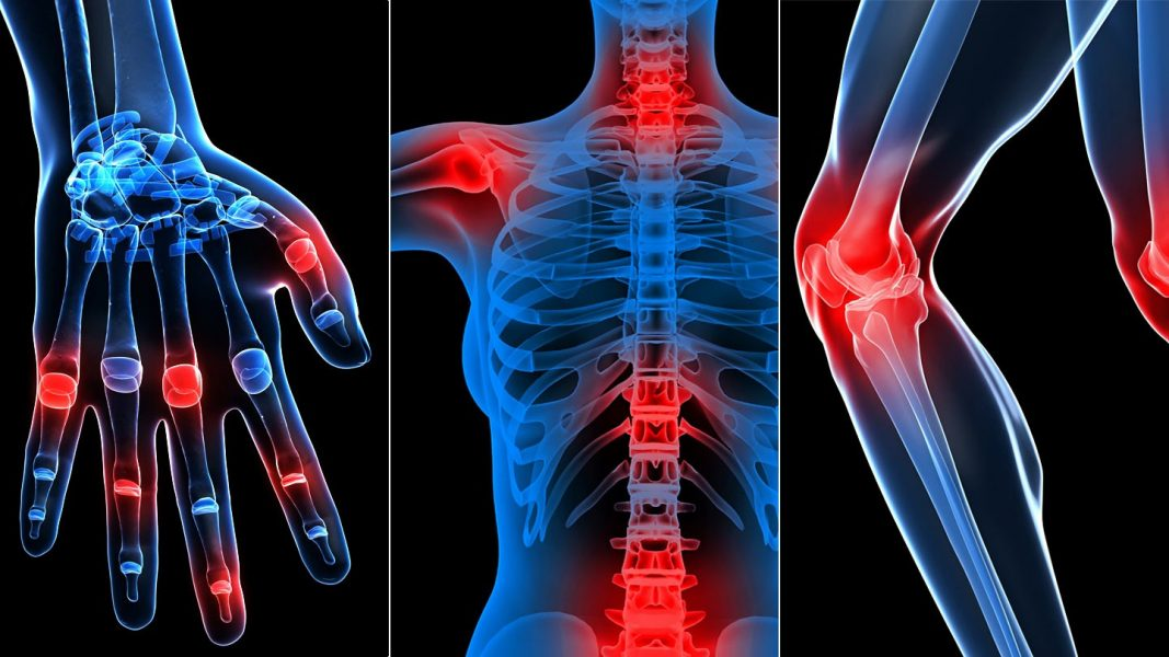 nyaki ízületi fájdalom