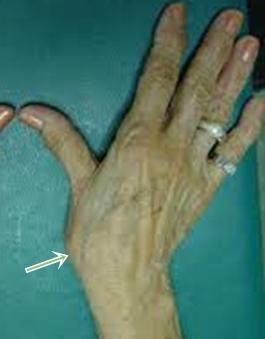 a kéz duzzanatát ízületi fájdalom okozza