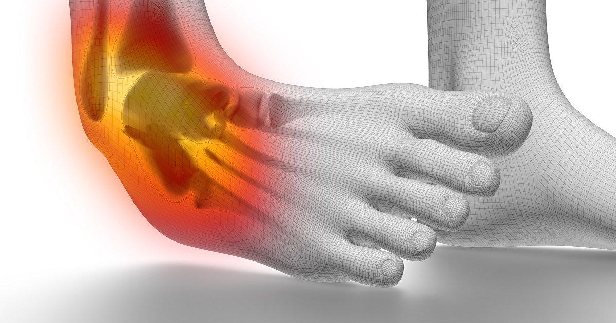 a bokaízület ízületi gyulladása kezelést okoz hogyan lehet kezelni a térd arthroso arthritisét
