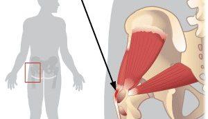 a csípő kattan és fáj lila tinktúra ízületi fájdalmak kezelésére