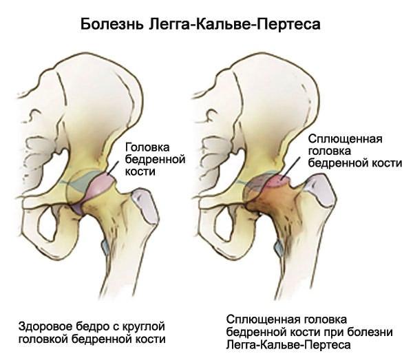 a csípőízület kezdeti deformáló artrózisa a boka ízületének fájdalmai