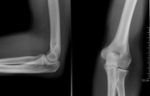 a fájdalom oka a lábujj ízületében
