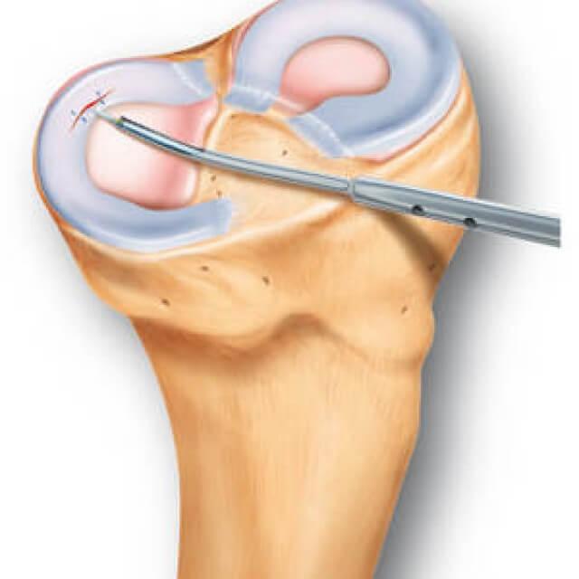 a jobb térdízület artrózisa 1 fok ízületek ízületi gyulladása, mint kezelni
