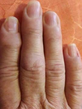 a középső ujj ízületi gyulladása easy forte izületi krém