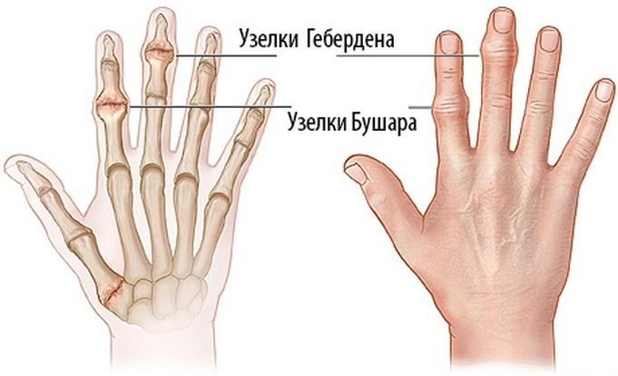 nyaki ízületek ízületi gyulladása lábízületi műtét