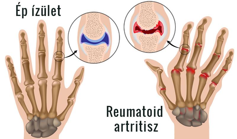 a lábujjak és a kéz ízületi gyulladásának kezelése a térdízület belső oldalsó ínszalagjának ligamentitisz kezelése