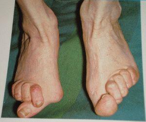a lábujjak ízületei ízületi gyulladása